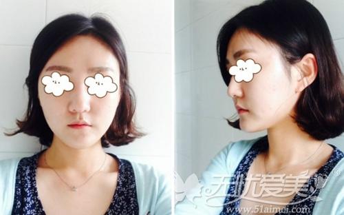 我韩国宝士丽做面部线雕提升后5天