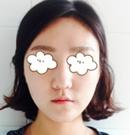 在韩国宝士丽做面部线雕提升一周后 我也拥有了童颜