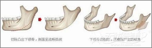 上海时光下颌角截骨术优势
