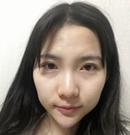 快来看看我在韩国宝士丽找李承浩做鼻综合手术后恢复过程