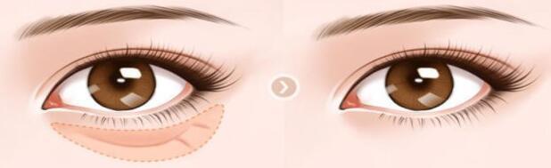 温州丝芙兰祛眼袋手术