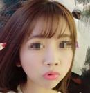 分享我找上海天大刘先超主任做鼻综合术后50天恢复全过程
