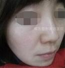 揭秘我在唐山煤医做激光祛斑的全过程 附上前后对比效果图