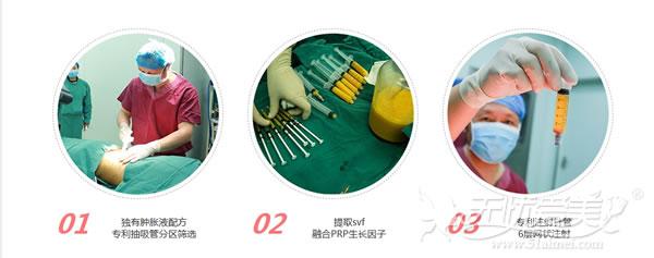 爱思特张敏院长实施自体活细胞精雕手术过程
