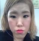脸型不好看?快来看看韩国原辰双颚+面部轮廓手术的效果吧