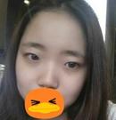 记录我在青海康华做眼综合+隆鼻手术3个月恢复过程