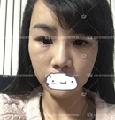 北京京民王志坚做鼻综合+面部吸脂+面部填充整形案例全过程