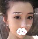 看这个在郑州爱美丽做达拉斯隆鼻后的小姐姐 秒懂女神养成