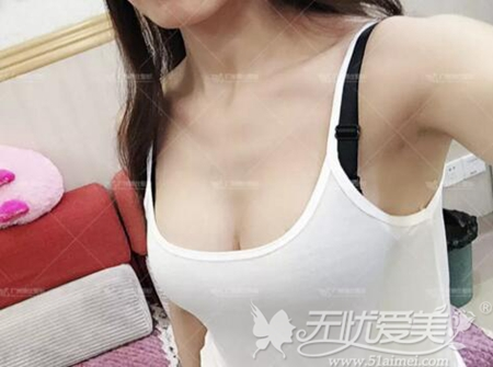 广州博仕整形员工体验月亮女神隆胸