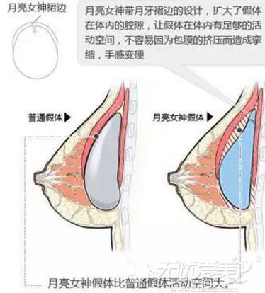 月亮女神隆胸假体预防包膜挛缩
