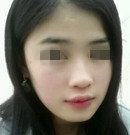 南昌广济易军学医生玻尿酸垫下巴+玻尿酸隆鼻手术案例分享