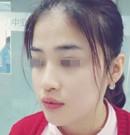 南昌广济易军学专家玻尿酸垫下巴+玻尿酸隆鼻手术案例分享