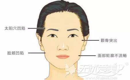 太阳穴凹陷、额头窄、脸颊凹陷