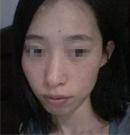 曾经大妈如今女神 太原华美整形后她从月收入两千变八万