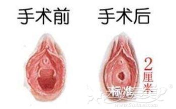 昆明梦想处女膜修复手术