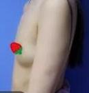 看我在厦门薇格做假体隆胸手术后 拥有了S形的身材