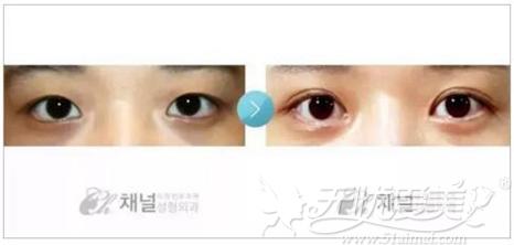 韩国整形大师韩充希的双眼皮案例