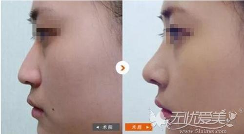 衡阳美莱硅胶隆鼻案例