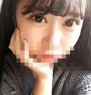 我在宁波壹加壹做双眼皮手术后拥有了俊俏媚眼