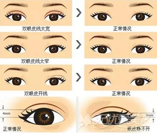 吴北京丽都可以修复的双眼皮类型
