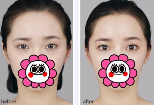 北京丽都双眼皮修复手术案例