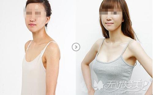 苏州爱思特BRAVA+自体脂肪移植丰胸案例