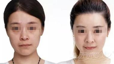 上海伊莱美面部脂肪填充案例