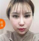 杭州华山连天美给我做了颧骨整形后 get女明星同款精致脸术后