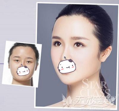 重庆星宸面部脂肪填充案例