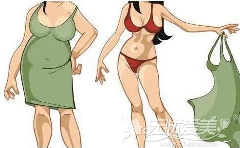 肥胖人群可选择做吸脂