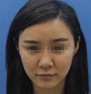 27岁有皱纹?在深圳江南春天做童颜线雕提升拥有了少女V脸