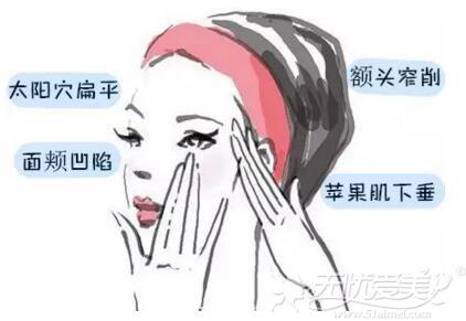 北京京韩乔爱军医生做面部脂肪填充怎么样贵吗?案例来揭秘