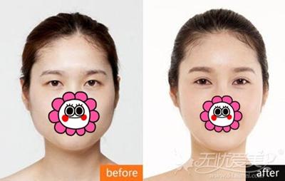 呼和哈特京美的注射瘦脸针案例