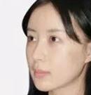 分享我在韩国清潭优做眼鼻手术+下巴整形+面部提升全过程