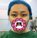 云南华美整形做了专属定制双眼皮后 我也有了爱笑的眼睛