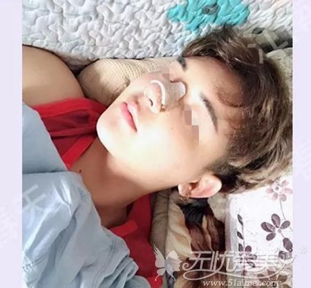 在深圳江南春天做隆鼻修复手术后3天