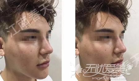 在深圳江南春天做隆鼻修复手术后8天