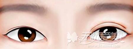 西安高一生修复双眼皮不对称的手术方法
