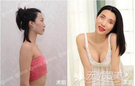 海南瑞韩自体脂肪丰胸案例