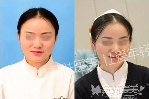 长沙晶肤半纹眉案例