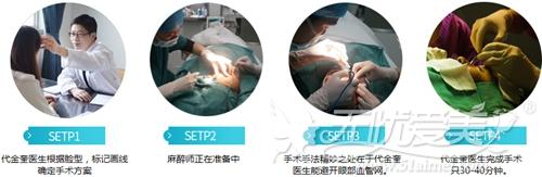 苏州爱思特灵韵大眼术手术过程