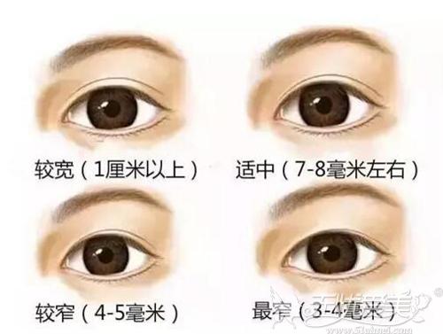 双眼皮宽度比较
