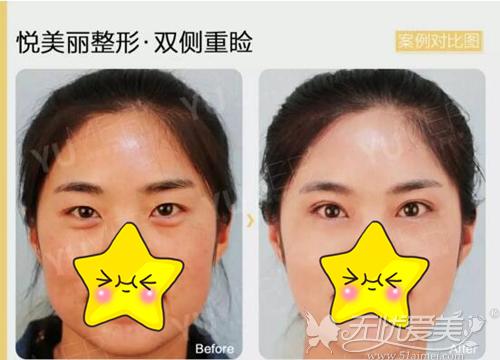 内眦赘皮双眼皮案例