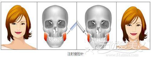 自贡尚美注射瘦脸针的方法