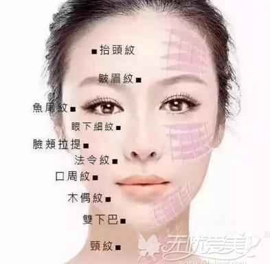 做面部线雕提升武汉五洲美莱和爱思特哪家好?