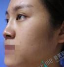 埋线隆鼻失败后选择在福州爱美尔做鼻部修复 术后效果很赞