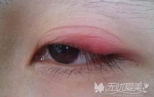 长期使用双眼皮贴会造成眼睛红肿