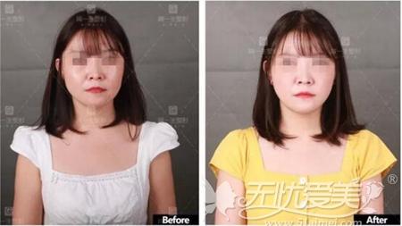 西安高一生脂肪移植填充面部案例