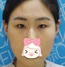 有幸让济南伊美尔王清峰主任给我割双眼皮 术后三天就上班