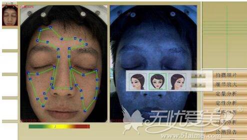 中山百佳顾客进行VISA皮肤检测